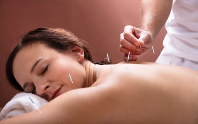 Dry needling, what is it? | Move More Podcast